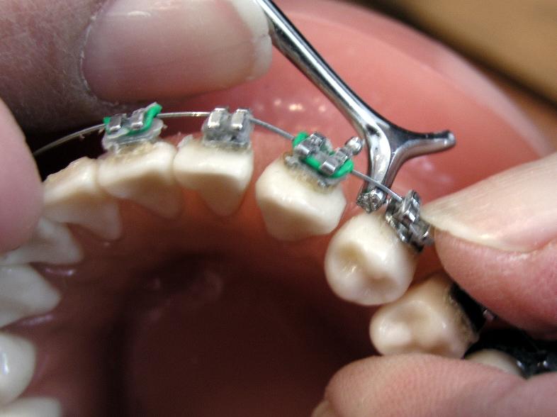 ¿Por qué es importante la ortodoncia?