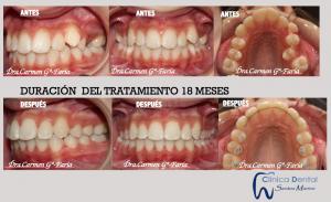 Ejemplos reales de Ortodoncia: antes y después